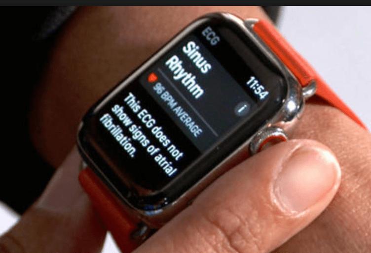 ECG Feature in Apple Watch